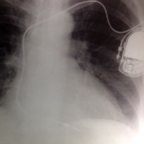 Single chamber pacemaker